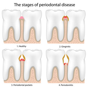 Stages-of-Periodontal-Disease